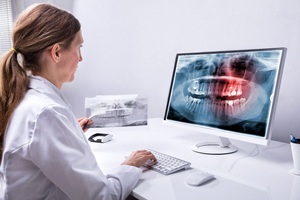 dental team member looking at X-ray on computer