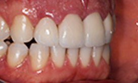 Frisco patient 9 after/>     <span>Before</span>     <span>After</span>     <h3>Dental Crown</h3>   </div> 	<div>     <img src=