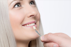 Women getting dental veneer