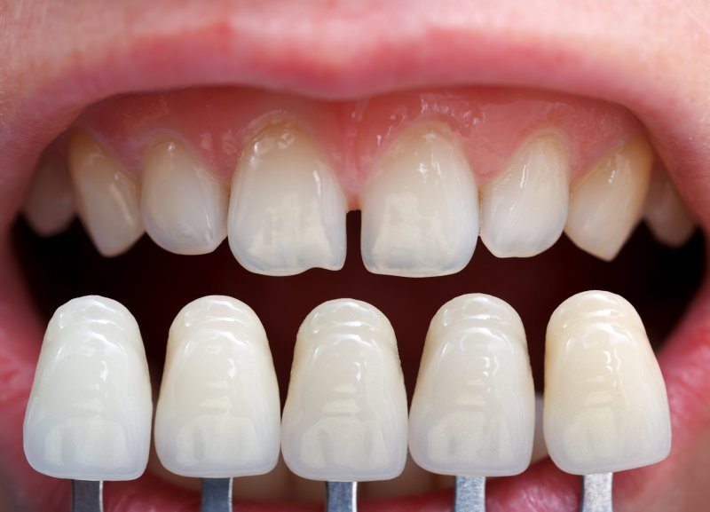 A row of porcelain veneers.